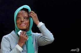 acid attack victim Sonali Mukherjee spurned the advances of three of her fellow students, they responded by melting her face with acid.