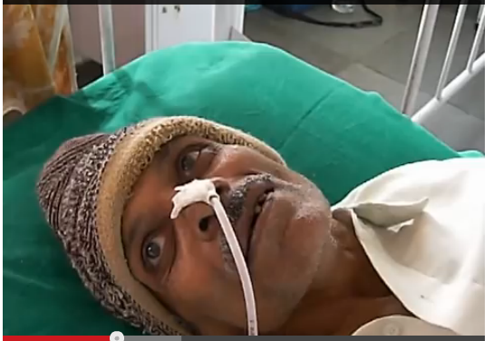 Indian Victim of Mad Cow Disease