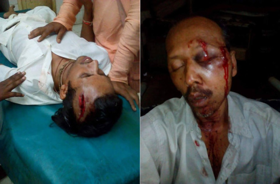 ISKCON Temple Attacked in Chittagong, Bangladesh. Several Hindu devotees brutalized by Islamists.