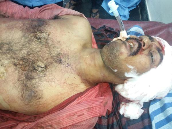 Hindu Florist Murdered and Eye Witness now also Dead