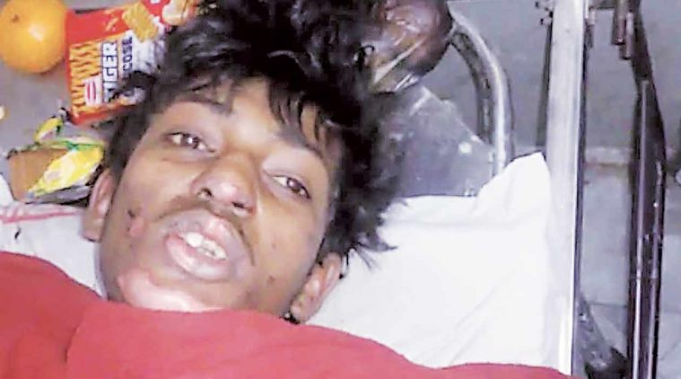 Pune: Teenager's father alleges his son was burnt alive after he said he was Hindu